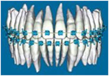 Braces on Orthodontic 3-D Digital Model of Teeth